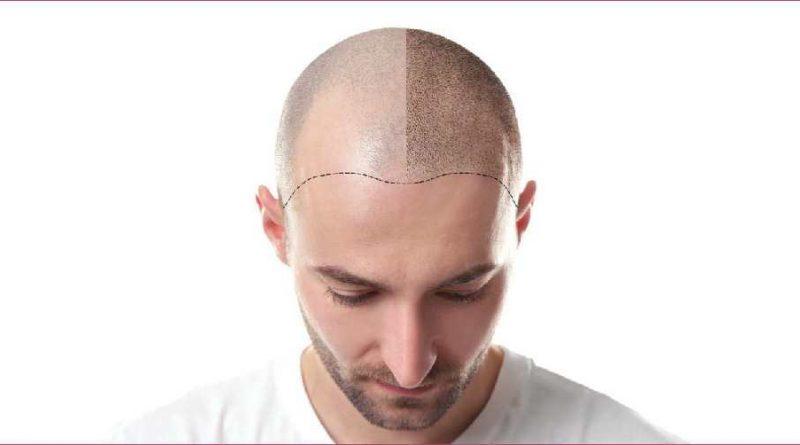 tatuaggio-capelli